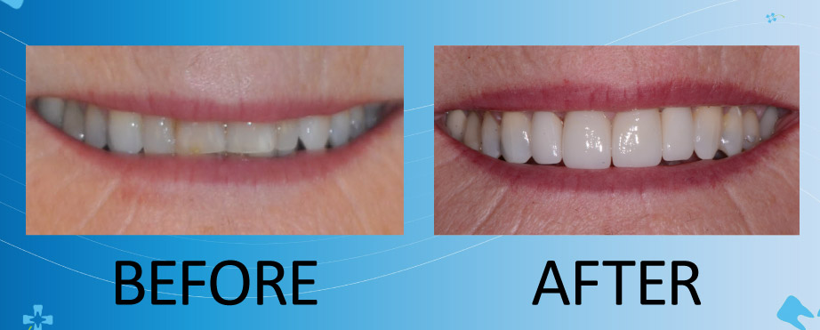 before and after photos of dental crowns