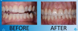 slightly crooked and misshapen teeth before treatment; even, properly aligned teeth after Invisalign treatment