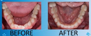 crooked and misaligned lower teeth before treatment, straight and properly aligned teeth after Invisalign treatment