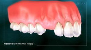 Spear patient education photo for dental implant placement to replace missing tooth or teeth