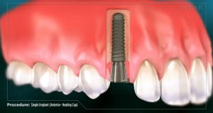 spear educational image to show implant post placement to replace missing tooth root
